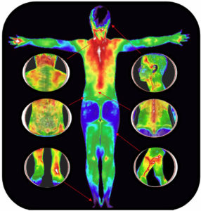 Benefit - Screening - Thermal Imaging Texas - Angel Marlow - Houston, TX